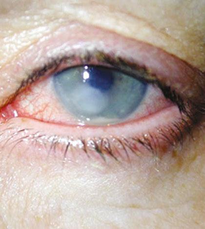ulcera-ocular